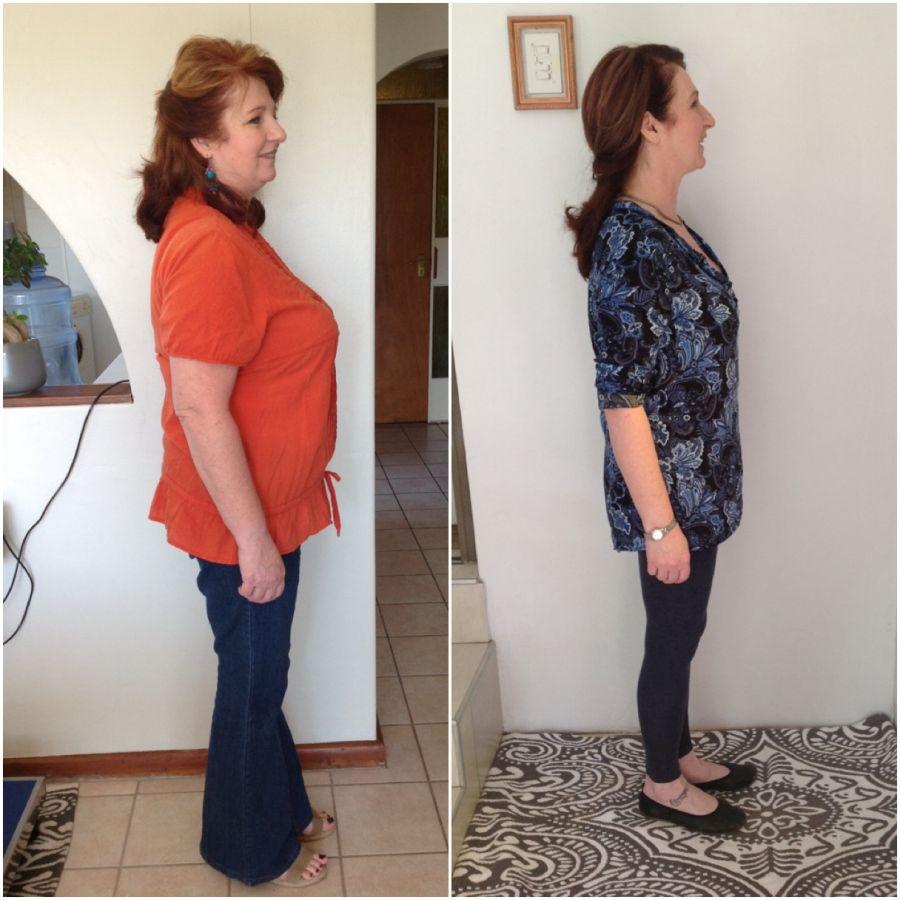 Weightloss Solutions in Port Elizabeth Eastern Cape